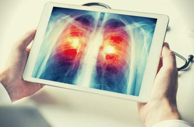 Optellum enters a strategic partnership with the Lung Cancer Initiative at Johnson & Johnson